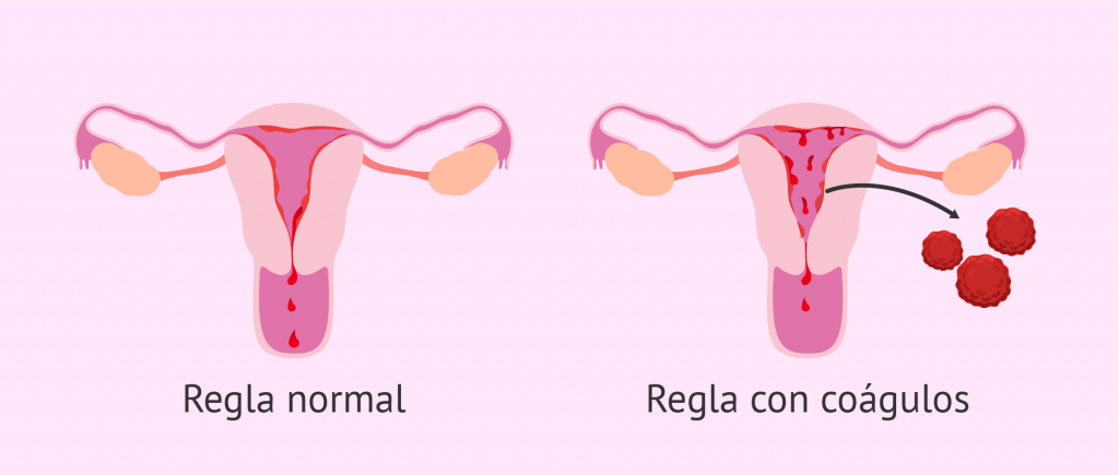 Foto de: https://www.reproduccionasistida.org/coagulos-en-la-menstruacion/